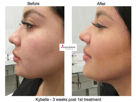 before picosure treatments and 2 weeks after my velashape 3 cleverly catheryn