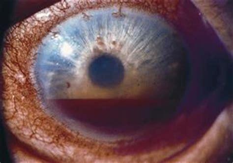 191 qu 233 es un hifema american academy of ophthalmology