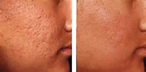 skin u love dermatology skin clinic quezon city