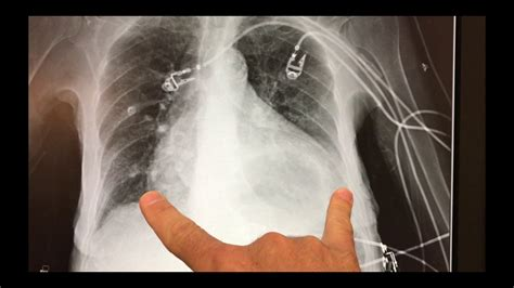 xray interpretation broken shoulder  large hiatal hernia youtube