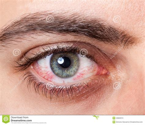 irritated red bloodshot eye stock image image 46963313