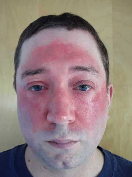 Hydrocortisone Detox by Grand Rounds In Dermatology 2 0 Erythema
