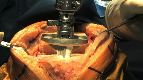knee surgery total knee replacement surgery part 2 update 2011