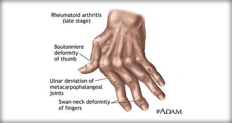 résumé definition rheumatoid arthritis nursing management interventions