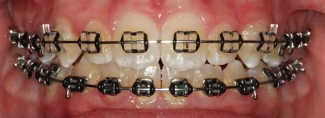 black color braces braces colours show your personality with colour