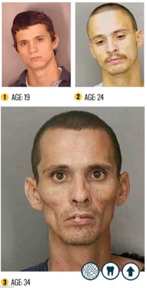 Medicine Detox Meth by Before And After Meth Crimes