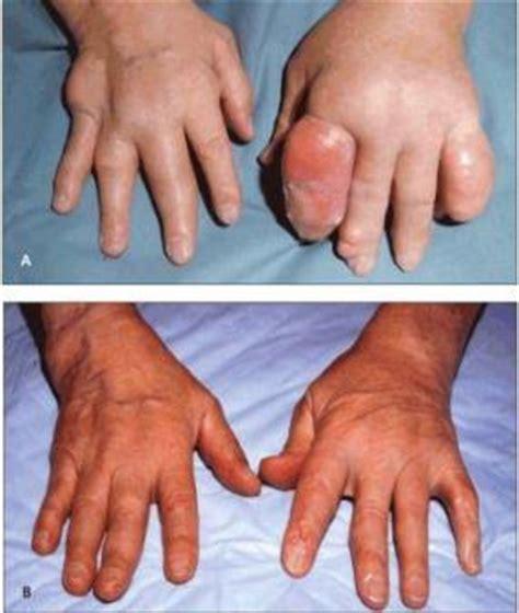 Obat Alami Trigliserida Lemak Darah Tinggi Obat Kesemutan Kebas Obat Tradisional Alami Sakit Penyakit Asam Urat Gout