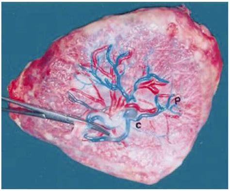 vascular pattern meaning patr 243 n vascular de los vasos sangu 237 neos cori 243 nicos de la