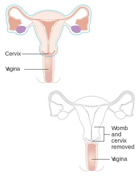 hysterectomy diagram hysterectomy