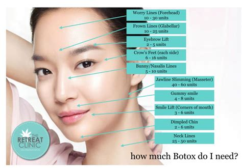 With The Most Botox by How Much Botox You Will Need Graphic Includes Units For