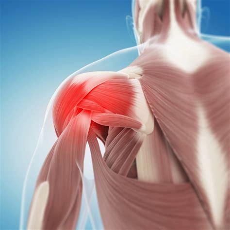 shoulder images frozen shoulder