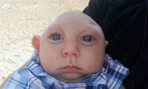 is baby born without brain possible just health net