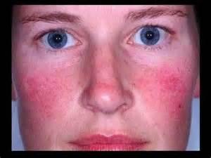 allergie au soleil les allergies de peau et boutons au