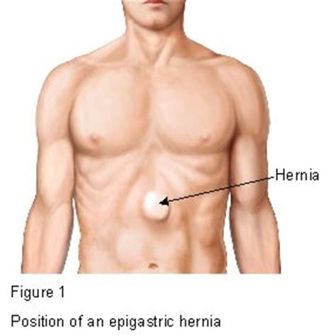 position of a epigastric hernia figure 1
