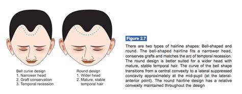 men hairline types basic hairline shapes created for hair transplant lam
