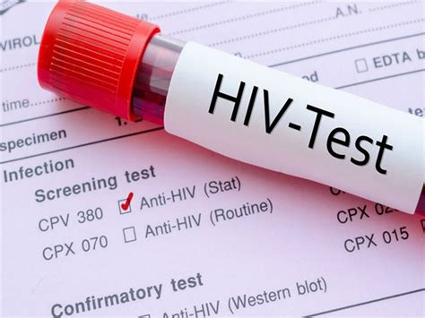 Banks To Undergo Aids Test On Show by 338 Infected With Hiv In Fyrom