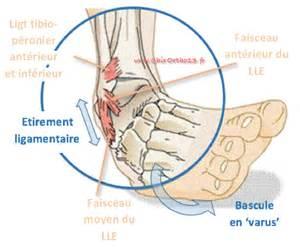 s 233 quelles des entorses de cheville et autres douleurs de