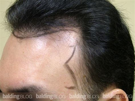 how to regrow african american temple hair image gallery temple hair