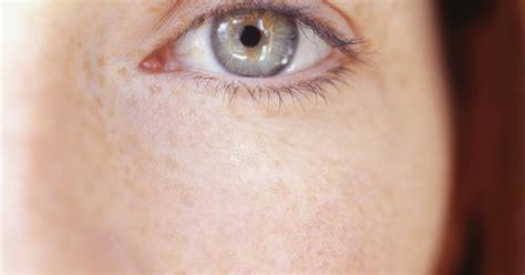 repair eyebrow loss livestrongcom