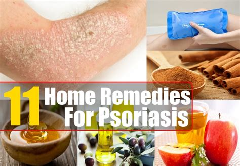 home remedies for psoriasis treatments cure