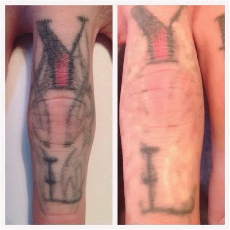 tattoo removal reading 20 minutes post picosure laser removal treatment