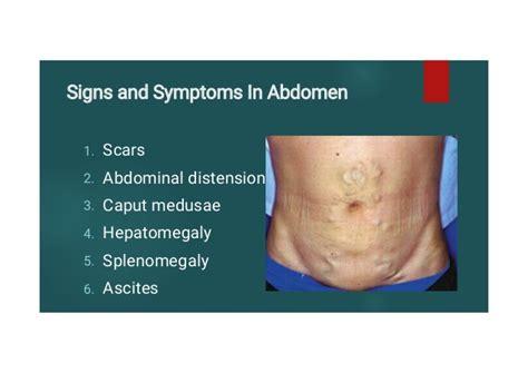 crossdresser signs symptoms in men herbal health ascites symptoms applecool info