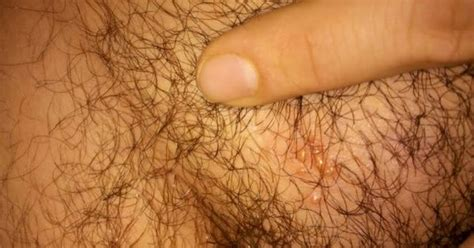 acceptable male pubic hair length the pubic hair herpes pimples on pubic area health pinterest pimple