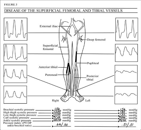 lower extremity arterial ultrasound worksheet quotes