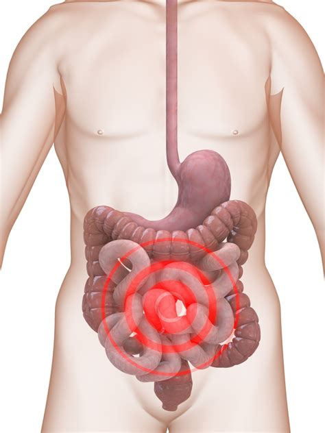 Stool Gas And Bloating by Irritable Bowel The Barkes Clinic