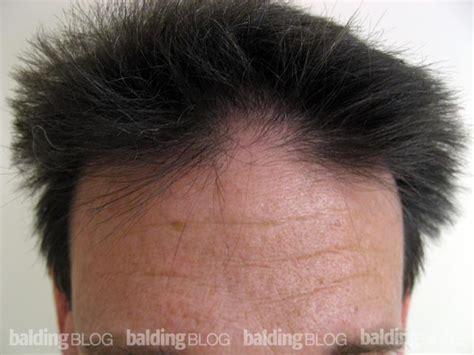 female mid frontal balding alopecia areata in a patient with a miracle cure with