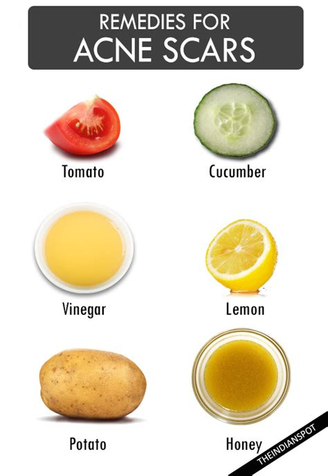 home remedies for acne overnight 28 images 7 remedies