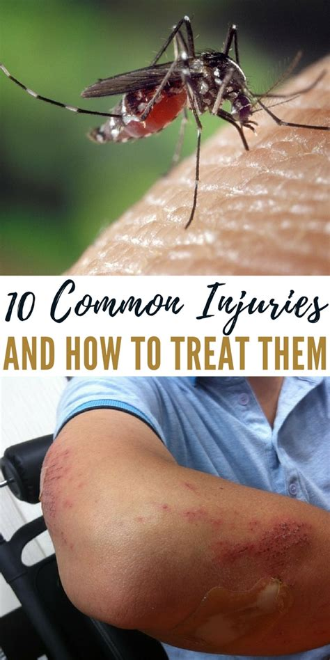 10 more websites that help cure writer s block with 10 common injuries and how to treat them