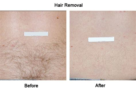 100 post my 3rd treatment of laser treatment laser hair removal cbelltown mount annan camden park