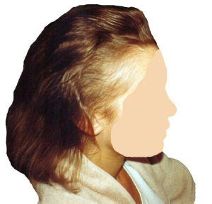 guide to hair loss conditions diagnose yourself short hairstyles for lupus lupus hair loss bing images