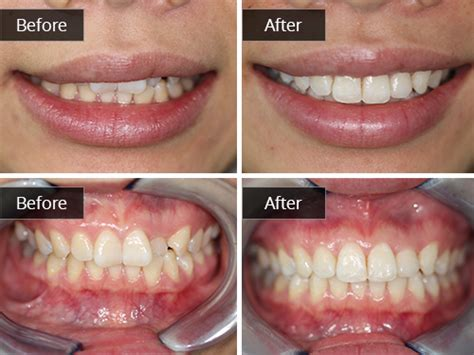 teeth straightening gallery edinburgh cosmetic dentist