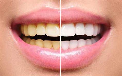 Buat Pemutihan Gigi hilangkan gigi kuning dengan 8 cara instan ini dijamin