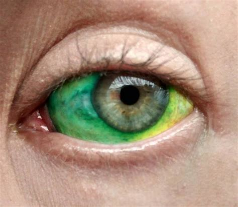 scleral tattoo sclera related keywords sclera