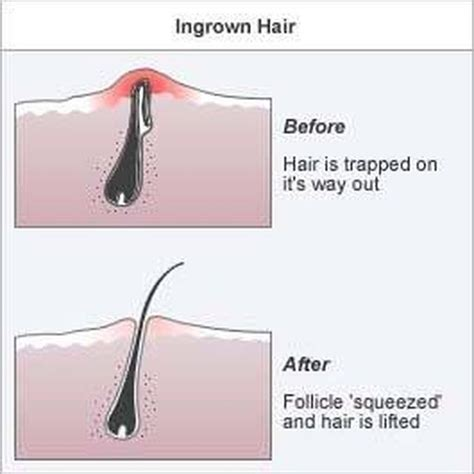 how to remove ingrown hair in thigh 15 best ideas about infected ingrown hair on pinterest