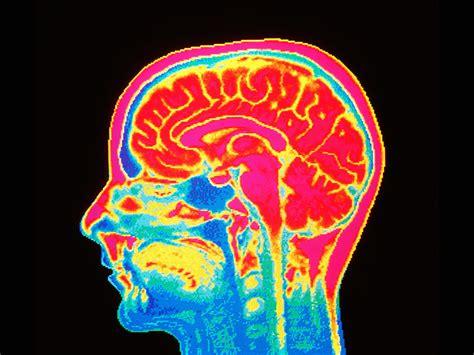 controversial brain imaging  ai   aim  suicide