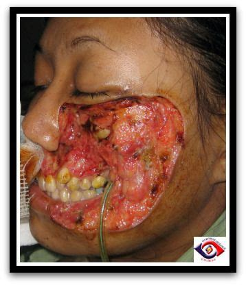 oral after c section 78 best images about infections on pinterest scarlet