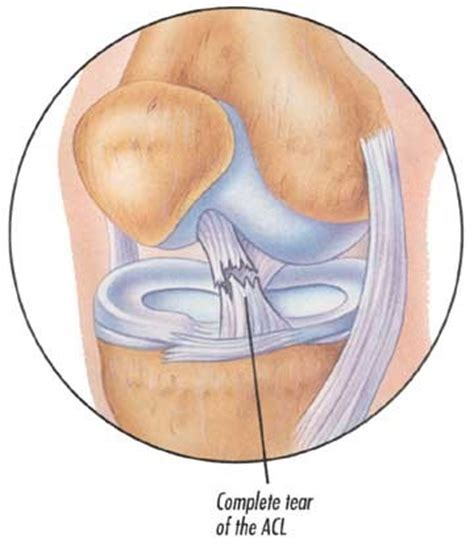 torn acl home treatment anterior cruciate ligament tears 171 dr samuel d md