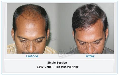 Hair Transplantation In Mumbai Reviews | hair transplantation in mumbai reviews before and after