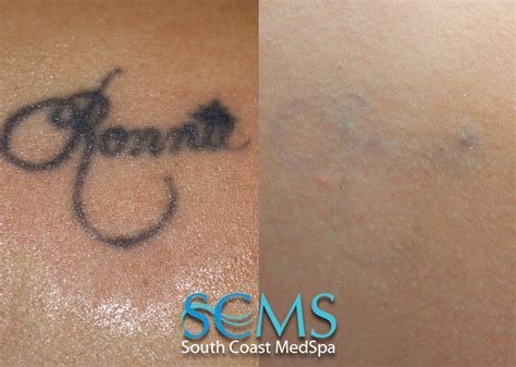 laser tattoo removal gallery smcs