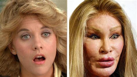 worst celeb plastic surgery 22 worst celebrity plastic surgeries youtube
