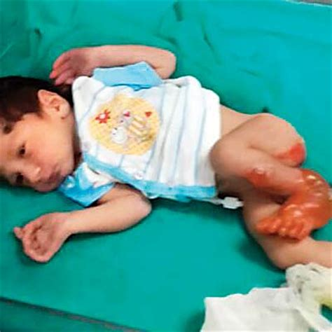 bathtub for baby in india baby scalded during bath hours after birth at private hospital in mumbai latest news