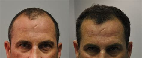 pictures of 1000 hair replacement grafts 1000 fue hair transplant 4 5 month follow up fallon hair