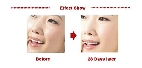 Ristra Anti Wrinkle Day 30g magic snail repair serum extract scar acne marks removal