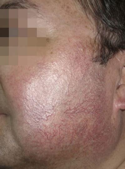 tattoo removal berkshire laser hair removal in bracknell berkshire rg12