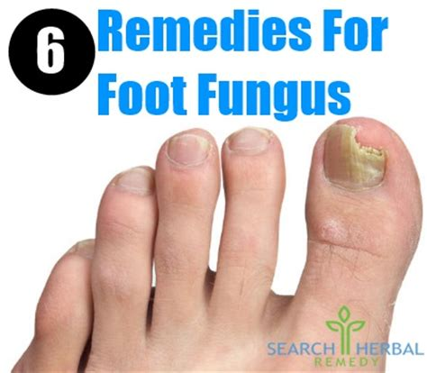 6 remedies for foot fungus treatments cure for
