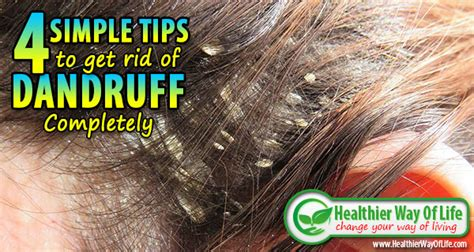 4 simple tips to get rid of dandruff completely minion scoop